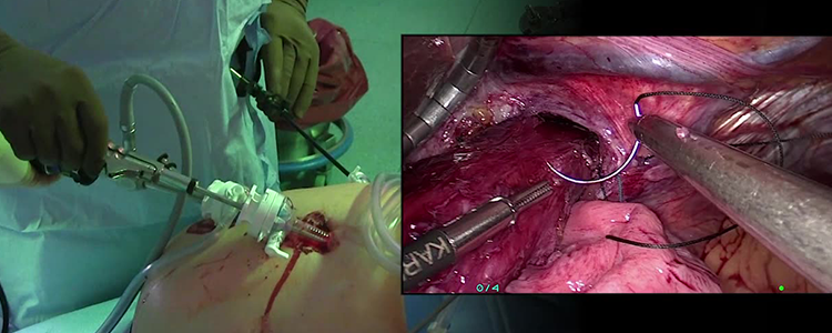 Laparoscopic Paraesophageal Hernia Repair