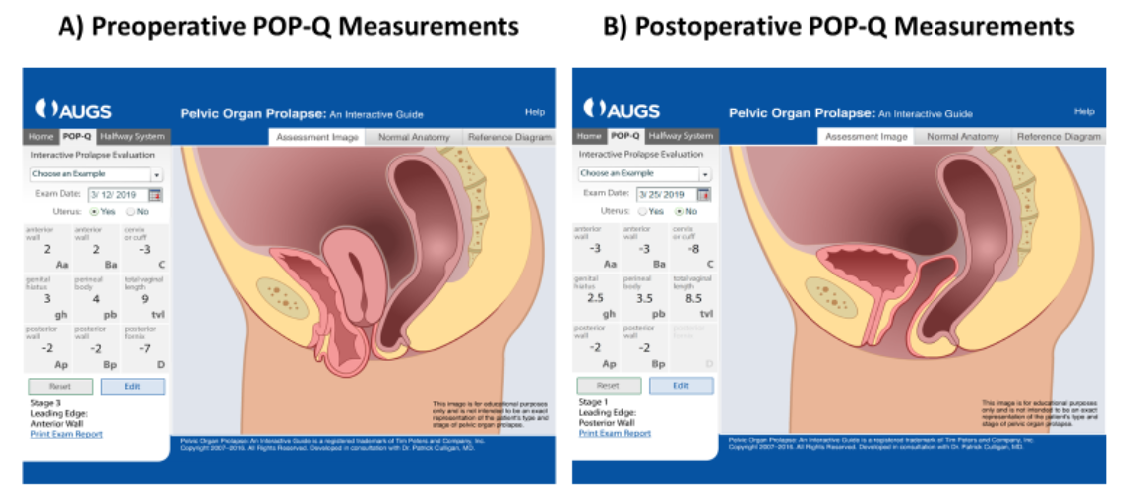 Figure 1. Graphic Demonstration of Pre- and Postoperative POP-Q Measurements