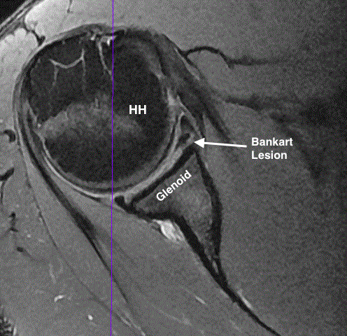 Axial magnetic resonance imaging showing a Bankart lesion in a left shoulder.